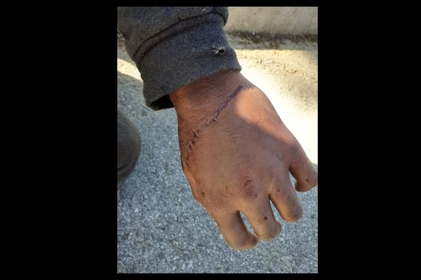 Injuries sustained by an asylum-seeker